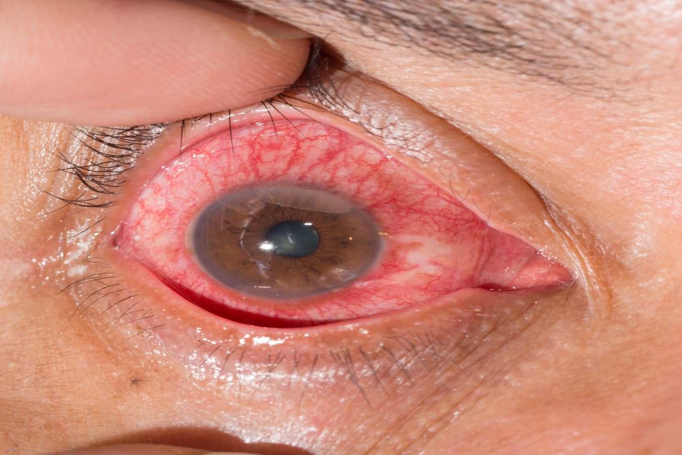 conjuntivitis virica duracion