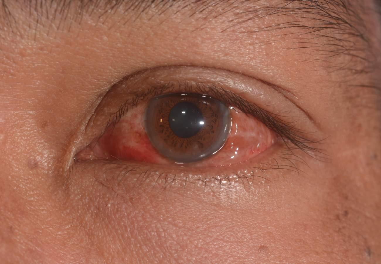 conjuntivitis virica tratamiento