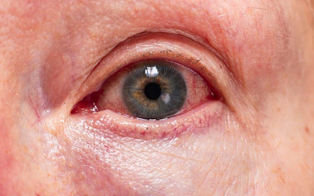 O que causa danos à córnea e como tratá-la?