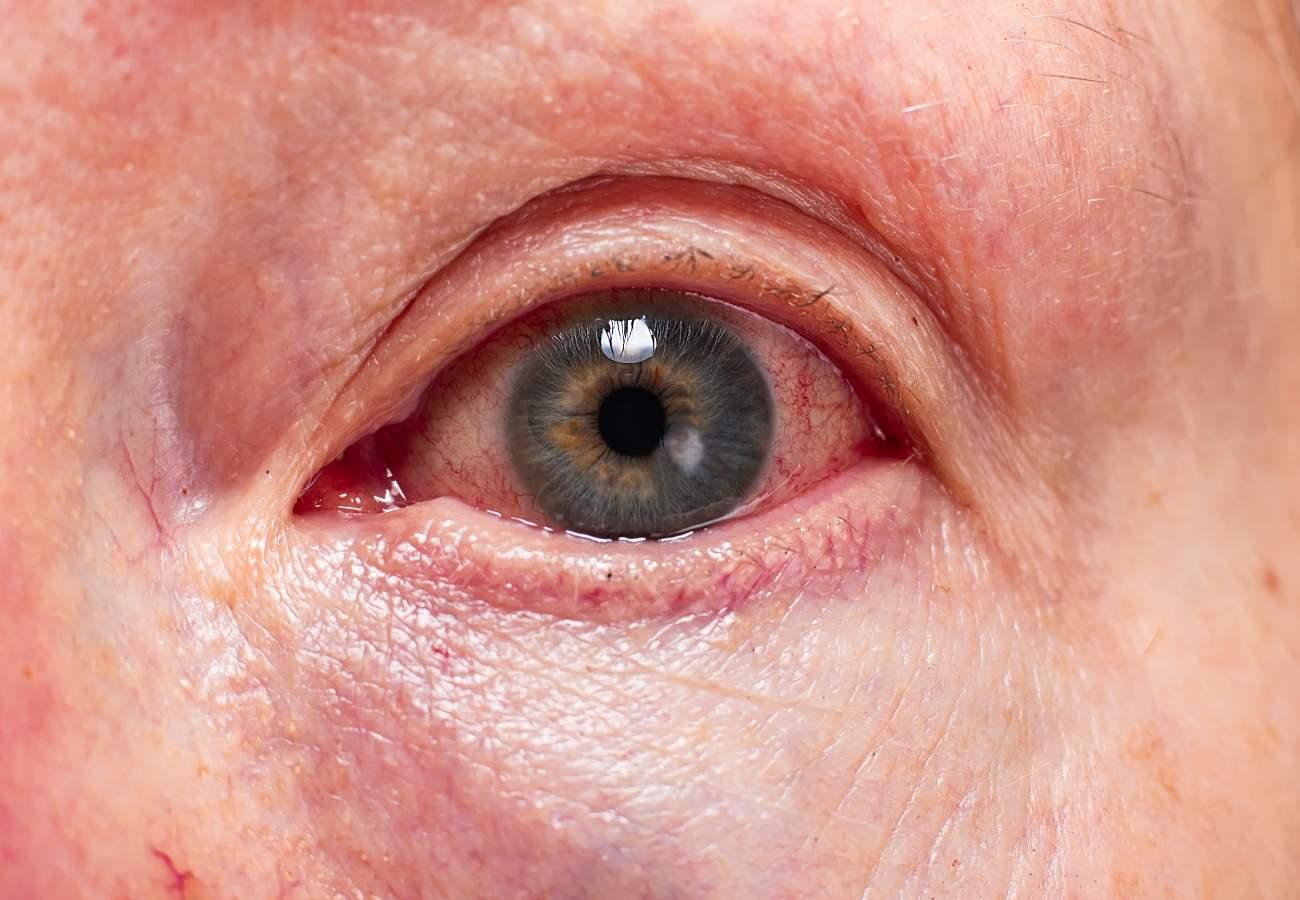 cornea dañada