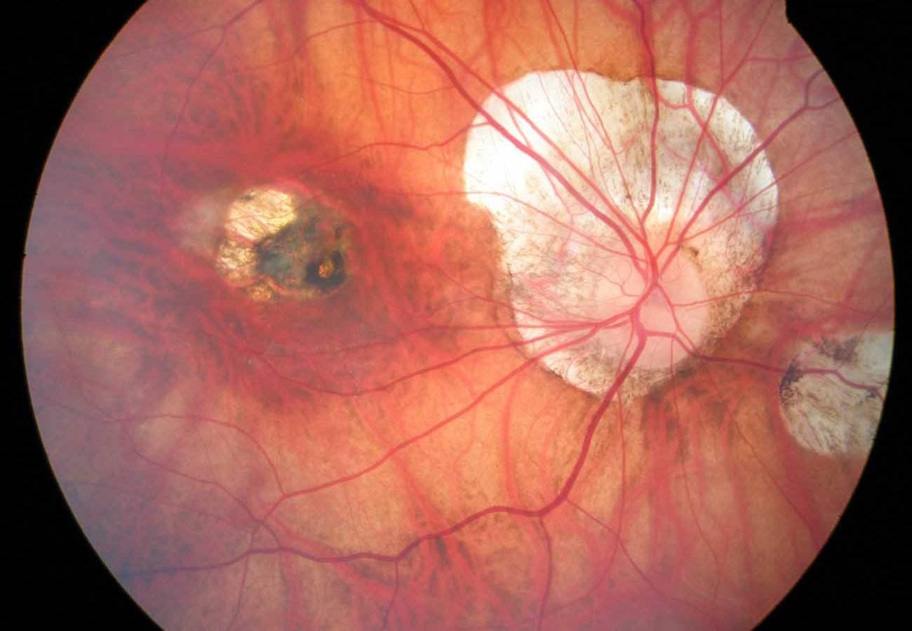 Degeneración macular miópica, síntomas, causas y tratamiento a seguir