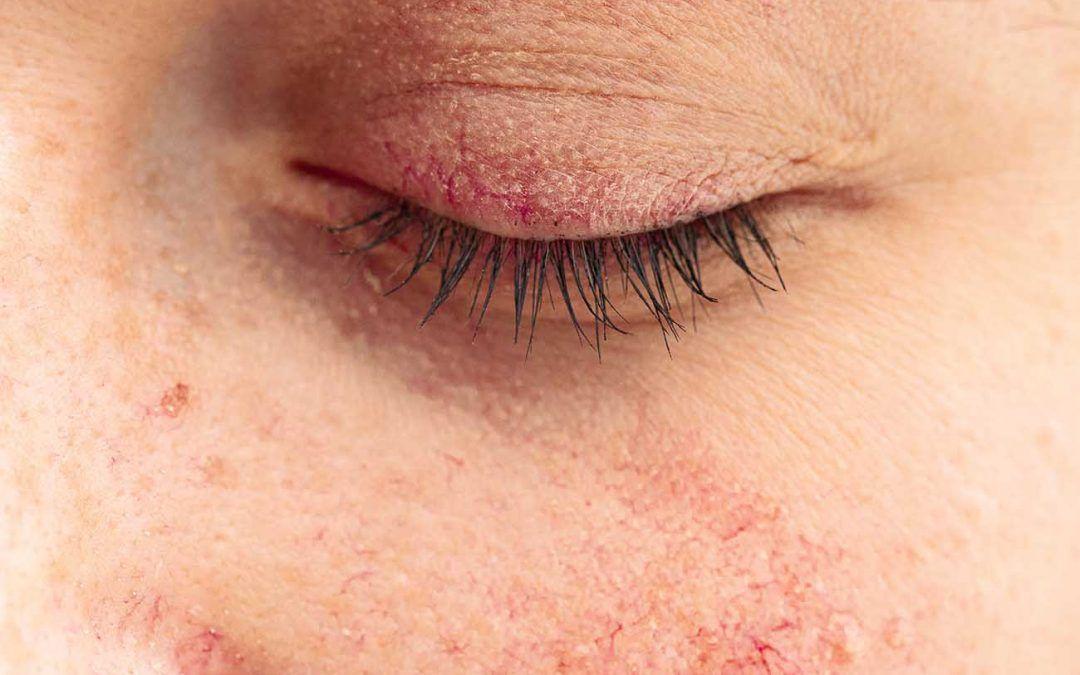 Dermatitis en los párpados: ¿qué es y cómo se cura?