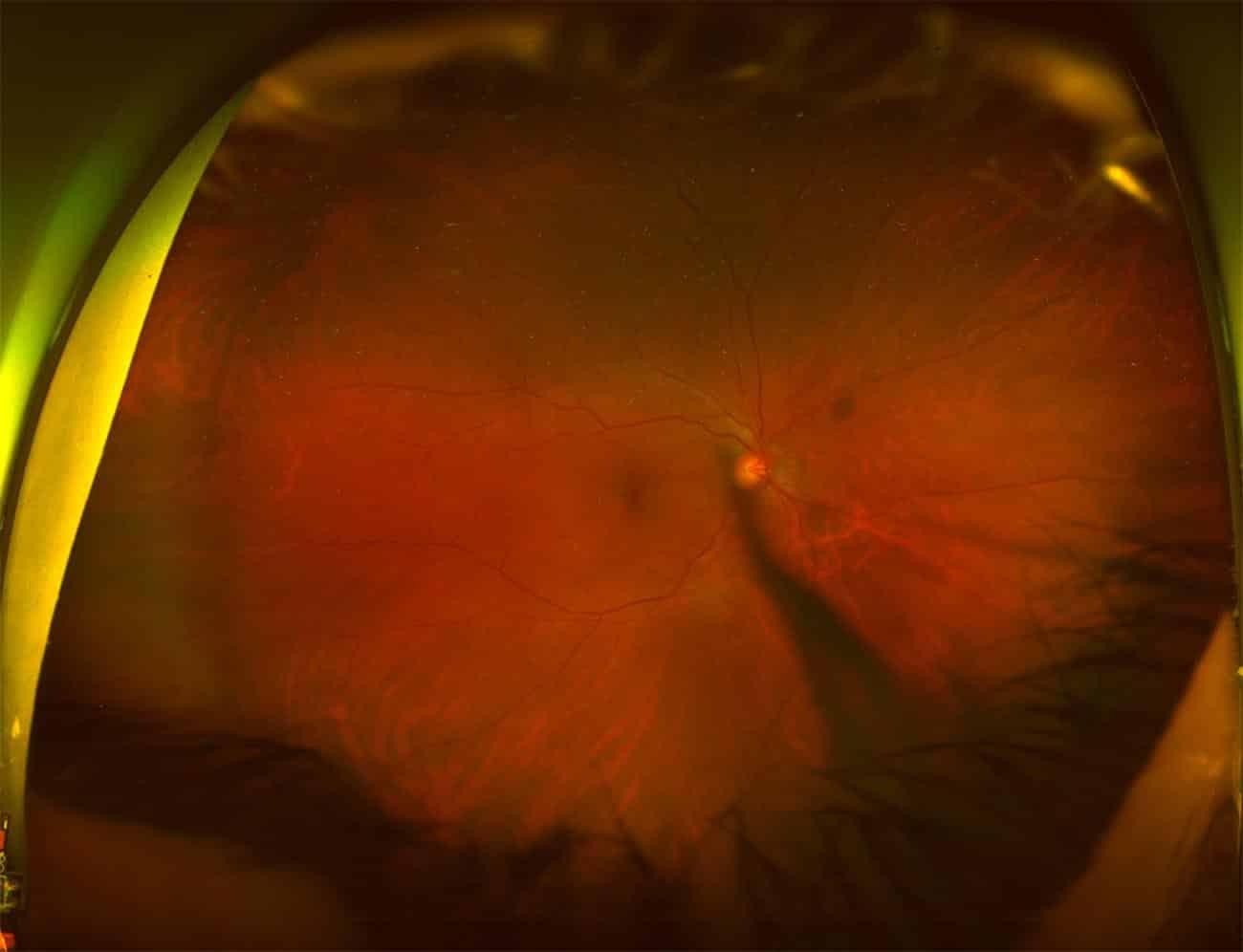 desprendimiento posterior de vitreo