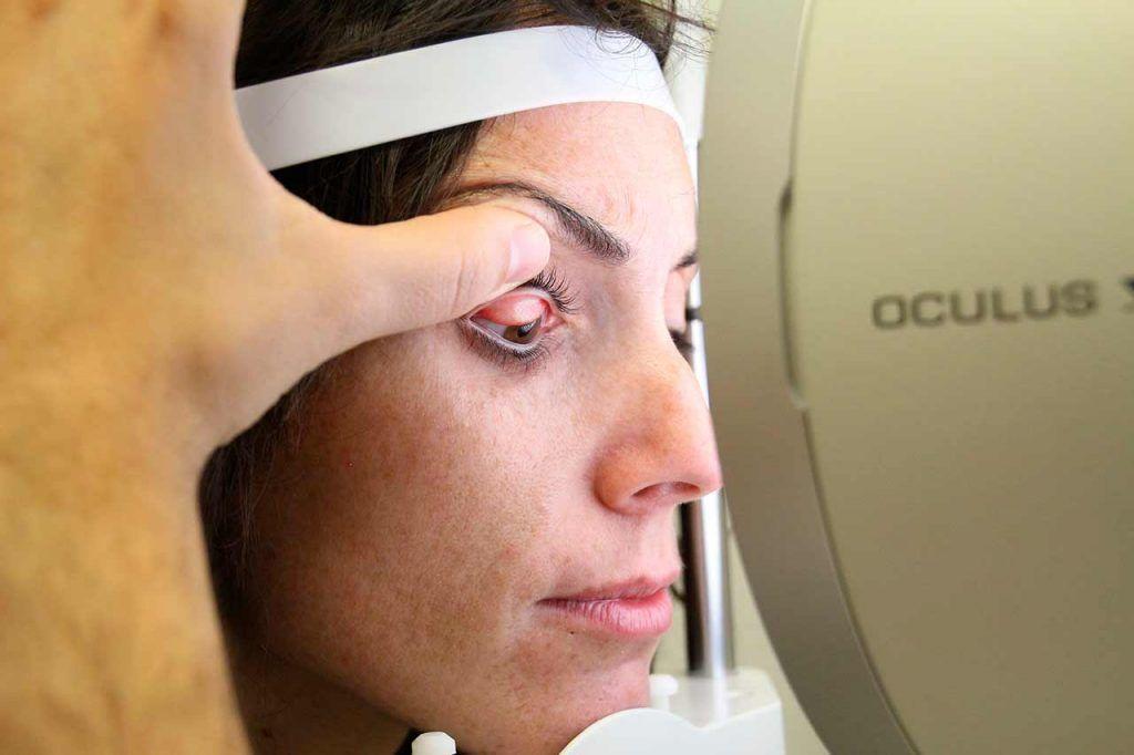 diagnóstico de olho seco