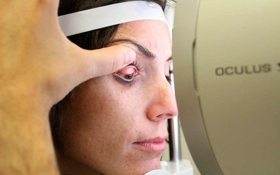 Cómo diagnosticar el ojo seco
