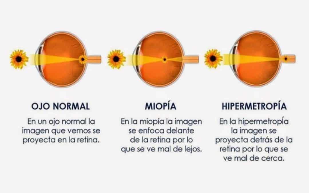 Diferencias entre hipermetropía y miopía
