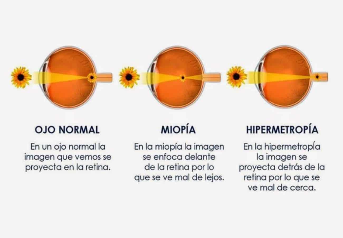 diferencia entre hipermetropía y miopía