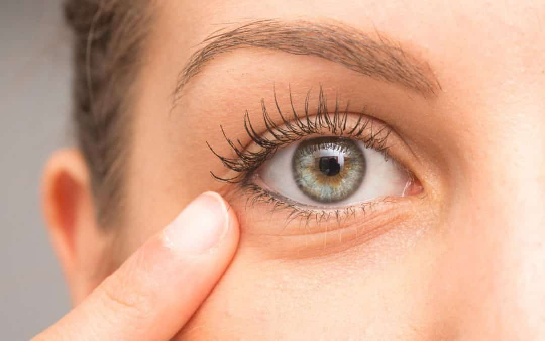 ¿Qué es la diplopía monocular y cómo tratarla?