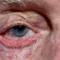Ectrópio: o que é, causas e tratamento