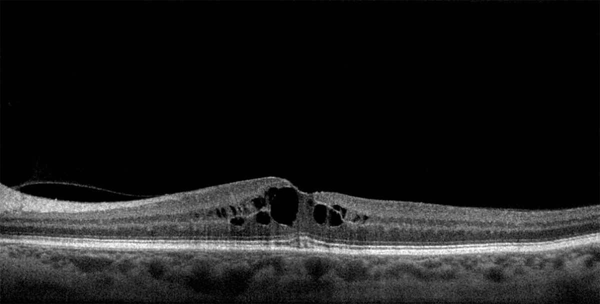 edema macular quistico oct