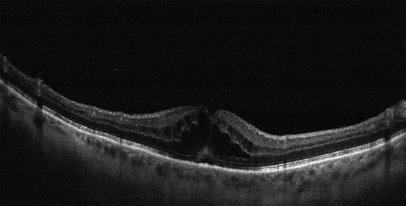 Edema macular, qué es, síntomas, causas y tratamiento