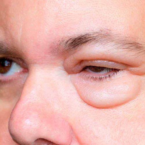 Edema palpebral: qué es, tipos y causas que lo provocan