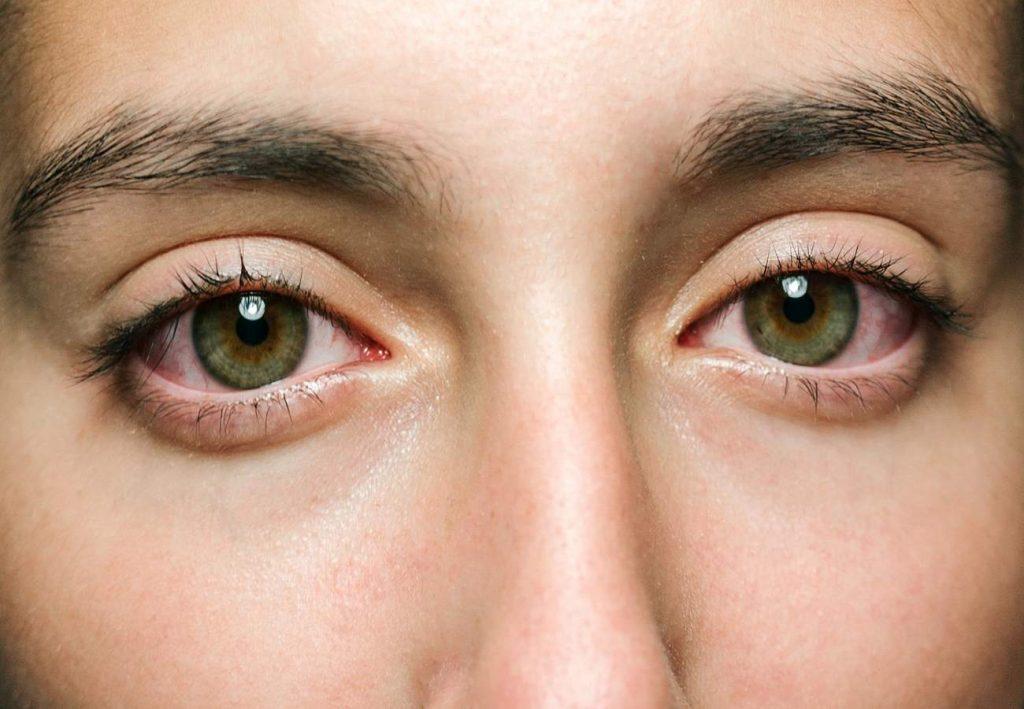 enrrojecimiento ocular y lentillas