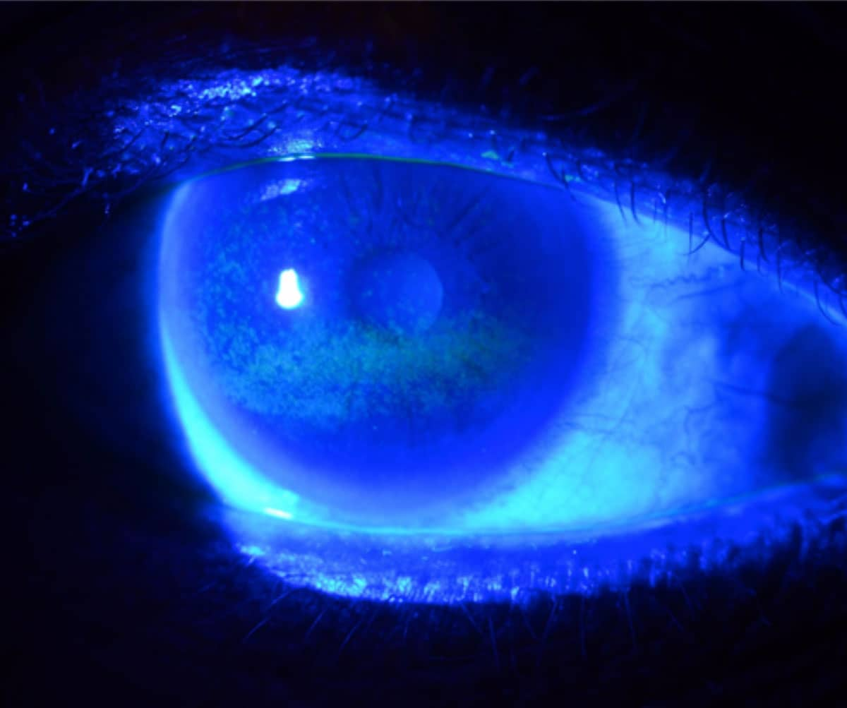erosion corneal