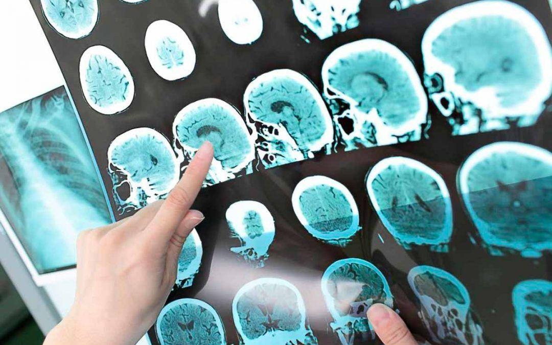 Esclerosis múltiple y afección ocular