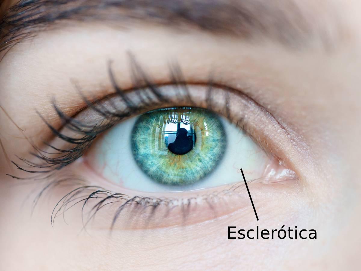 Esclerótica