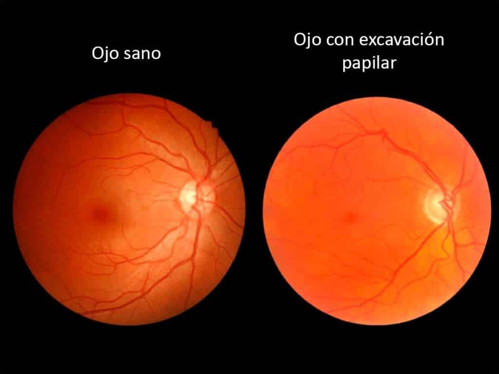 excavacion papilar glaucomatosa