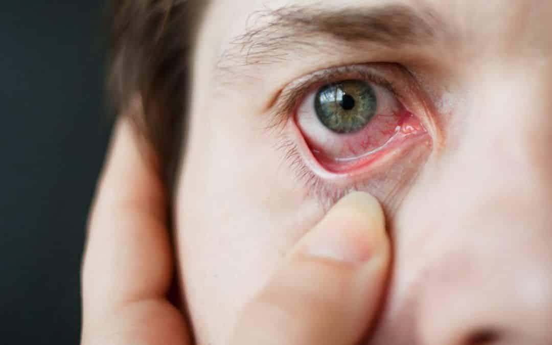 Astenopia o fatiga visual. Consejos para descansar la vista