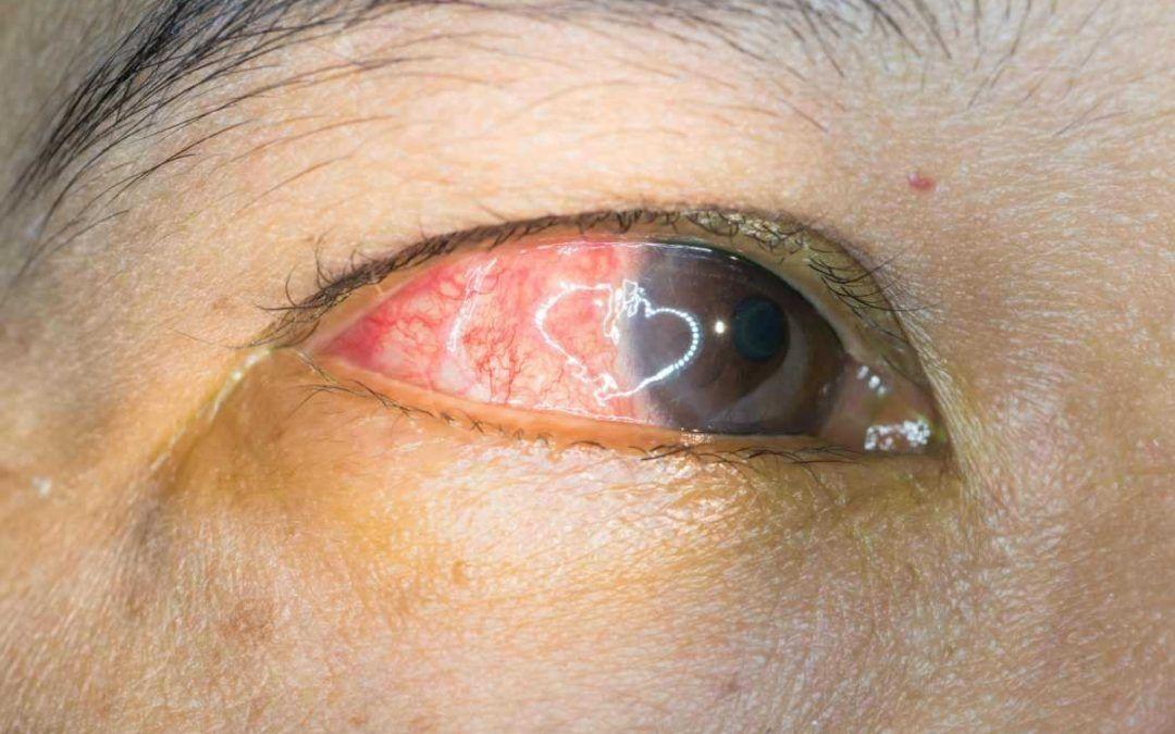 ¿Qué es la Fístula carótido-cavernosa? Causas, Diagnóstico y Tratamiento