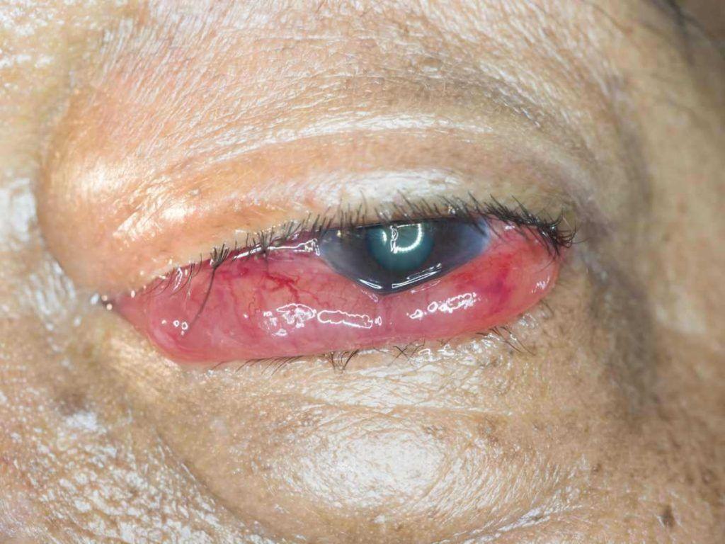 fistula carotido cavernosa diagnostico