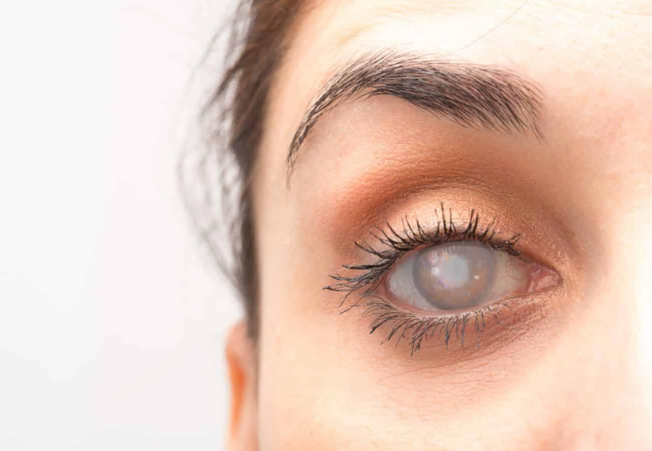 glaucoma congenito tratamiento