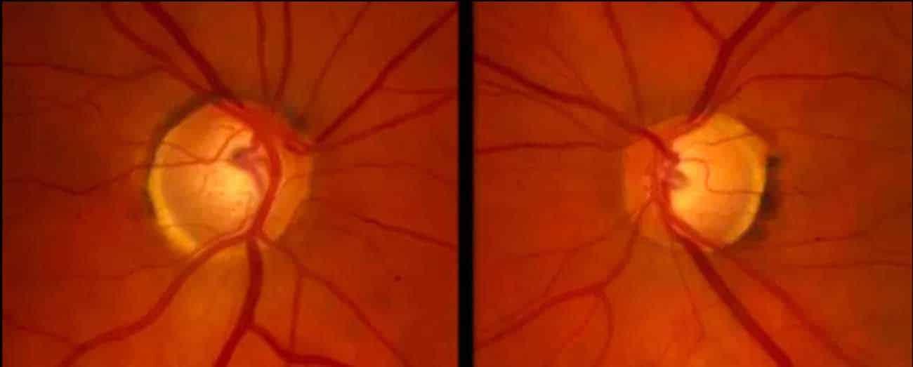 glaucoma normotensivo