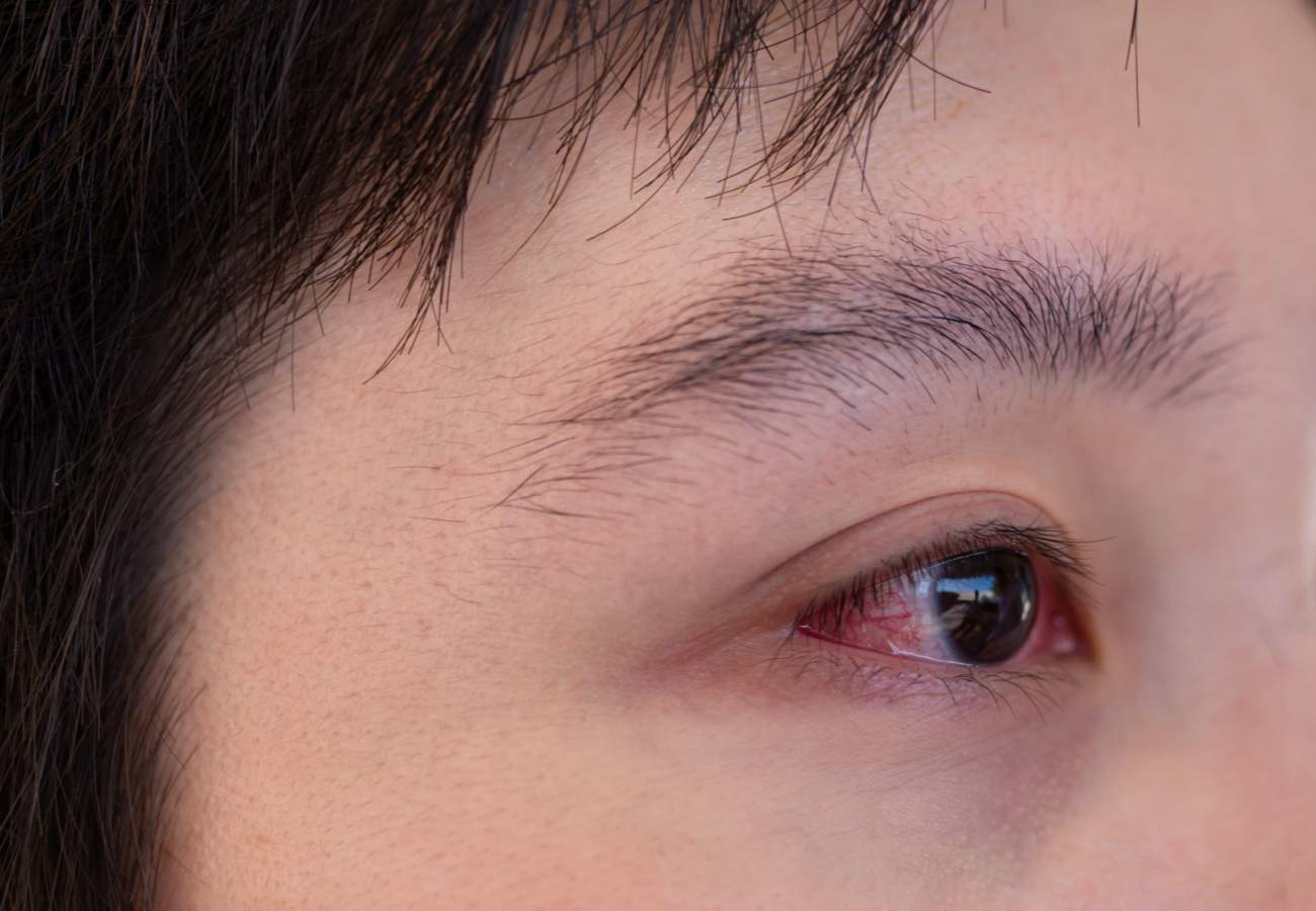 grano blanco dentro del ojo