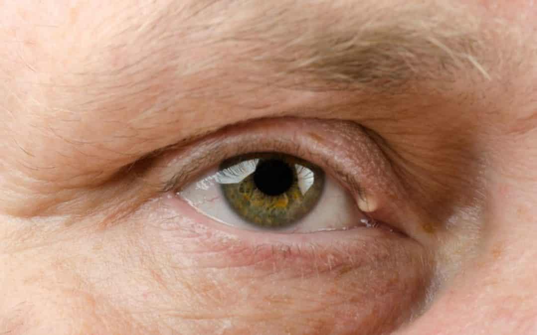 Espinha nos olhos: o que fazer quando aparecer