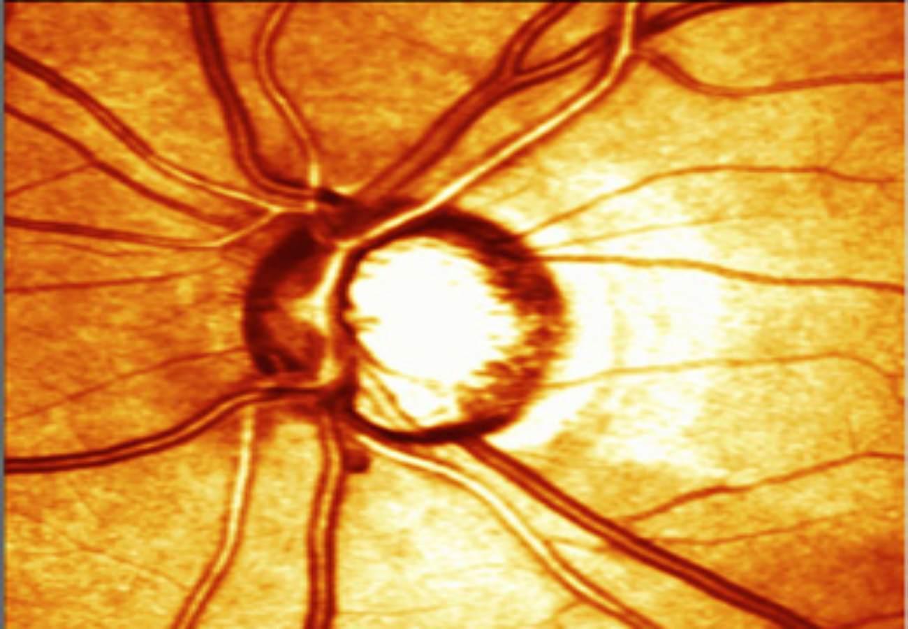 hrt oftalmologia