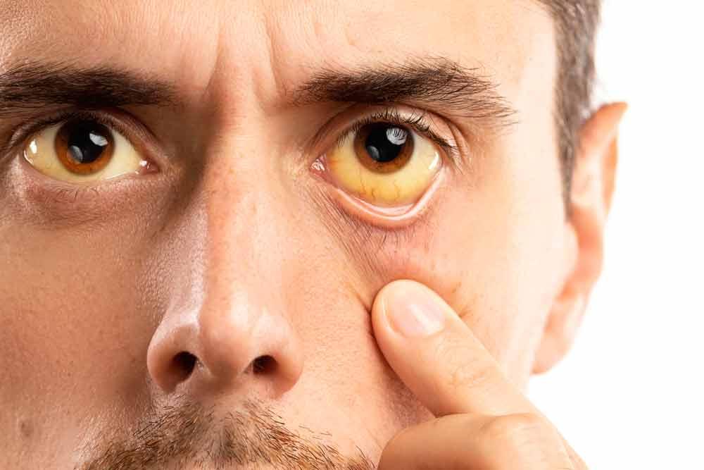Ojos amarillos, causas y tratamiento de la ictericia