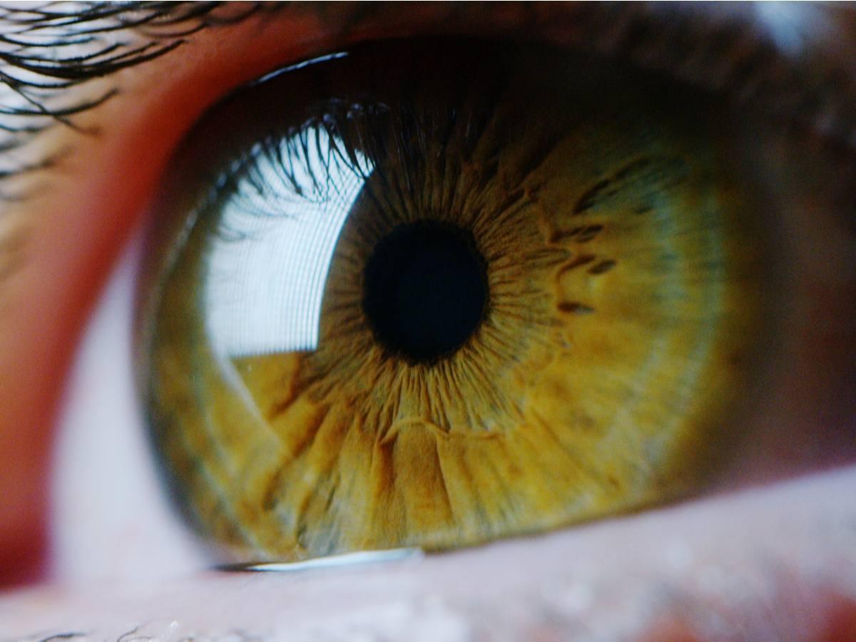 Íris dos olhos