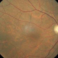 Cómo funciona la retina