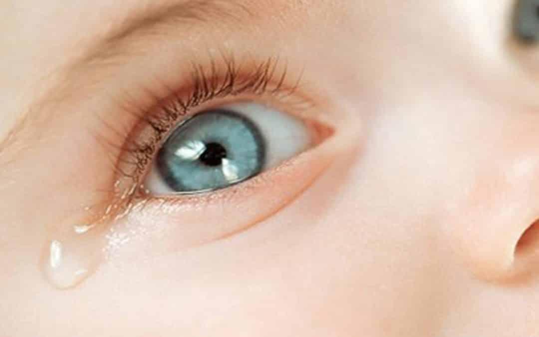 Lagrimal obstruido en bebés: Qué hacer