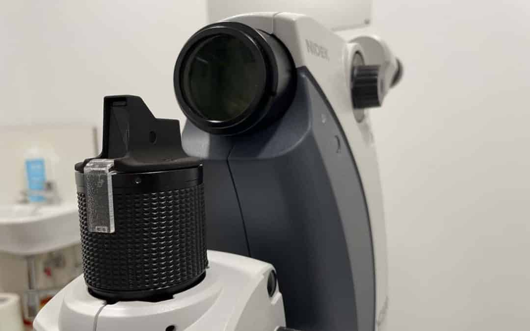 SLT glaucoma laser to reduce intraocular pressure