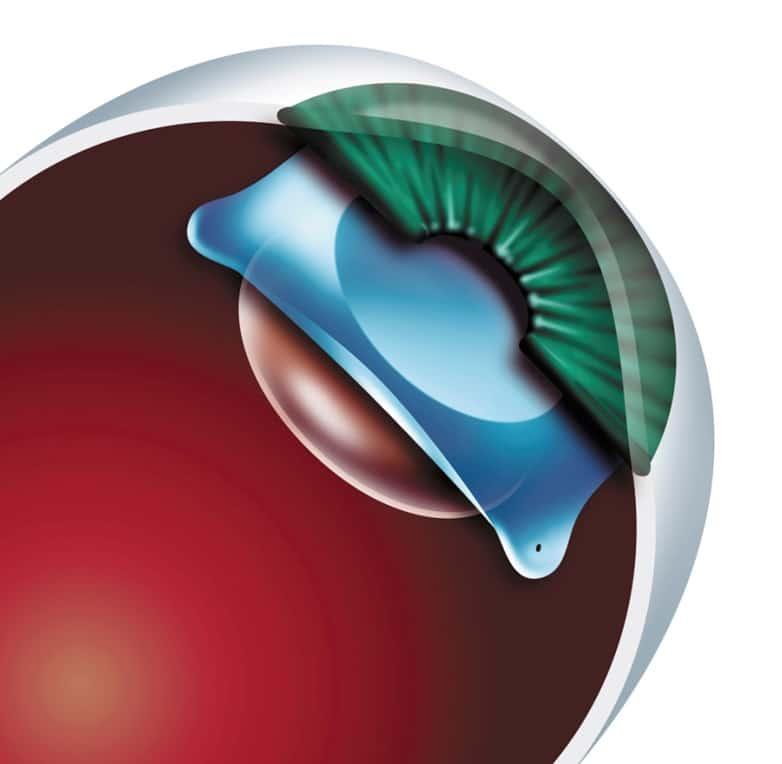 lente intraocular miopia