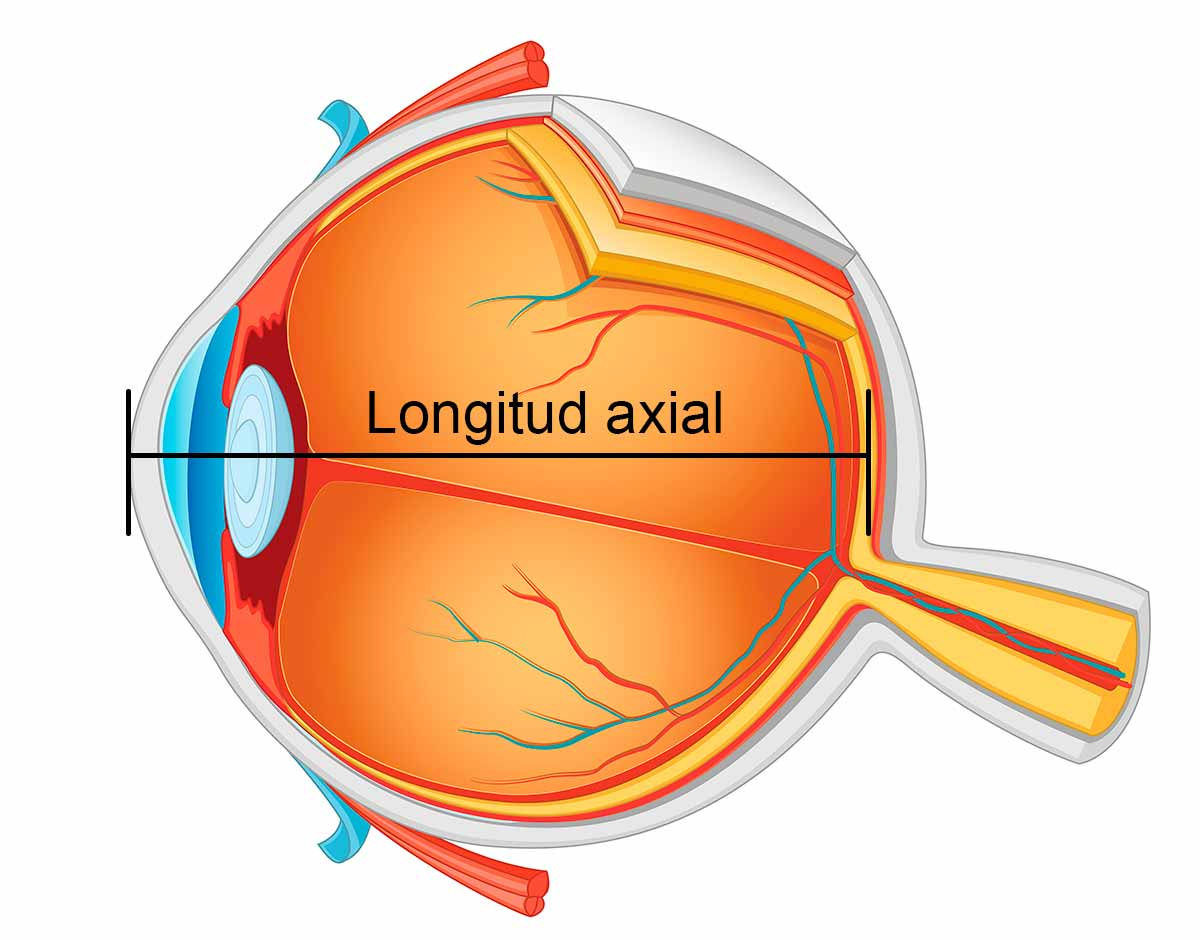 Longitud axial
