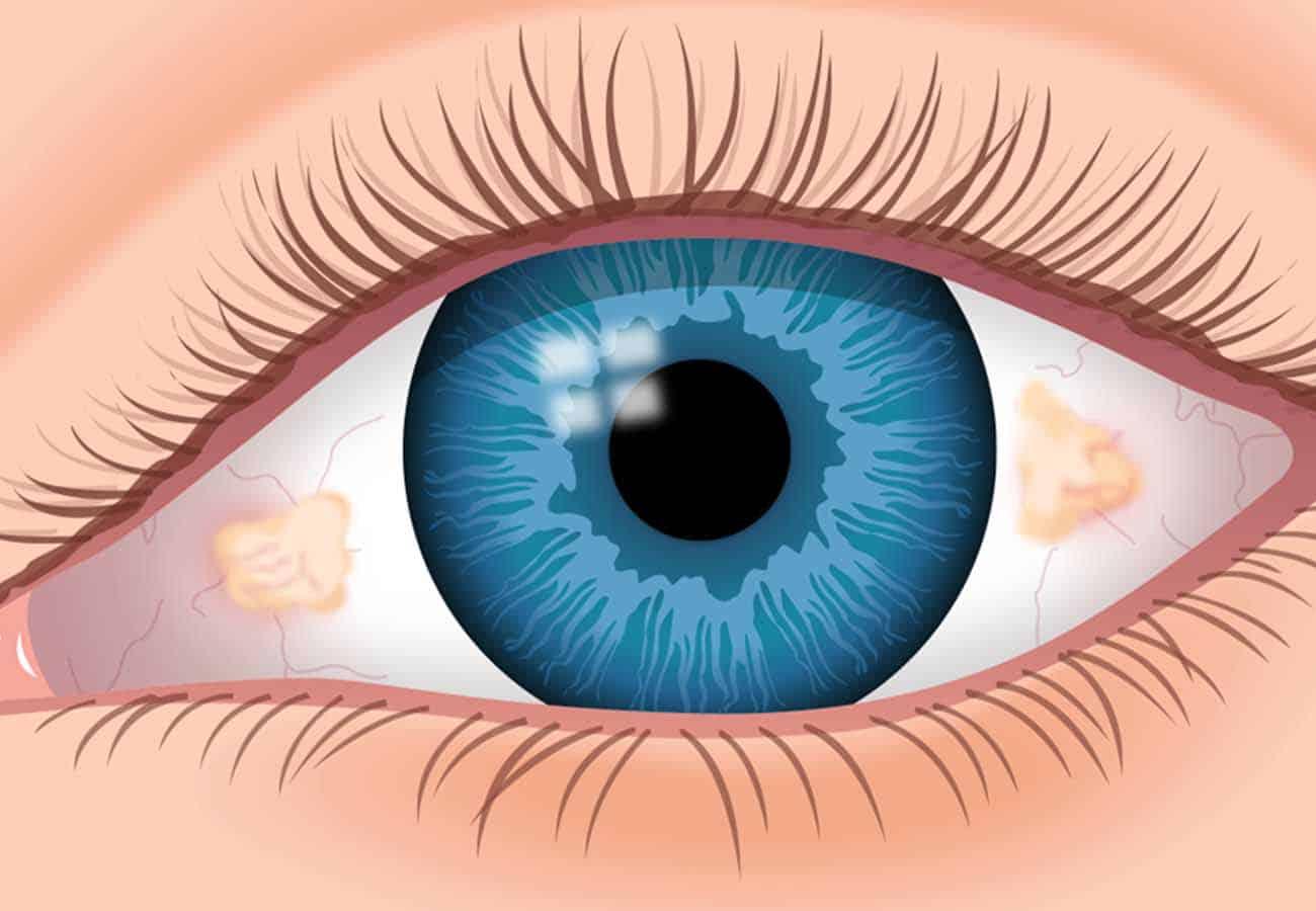 mancha blanca en el ojo