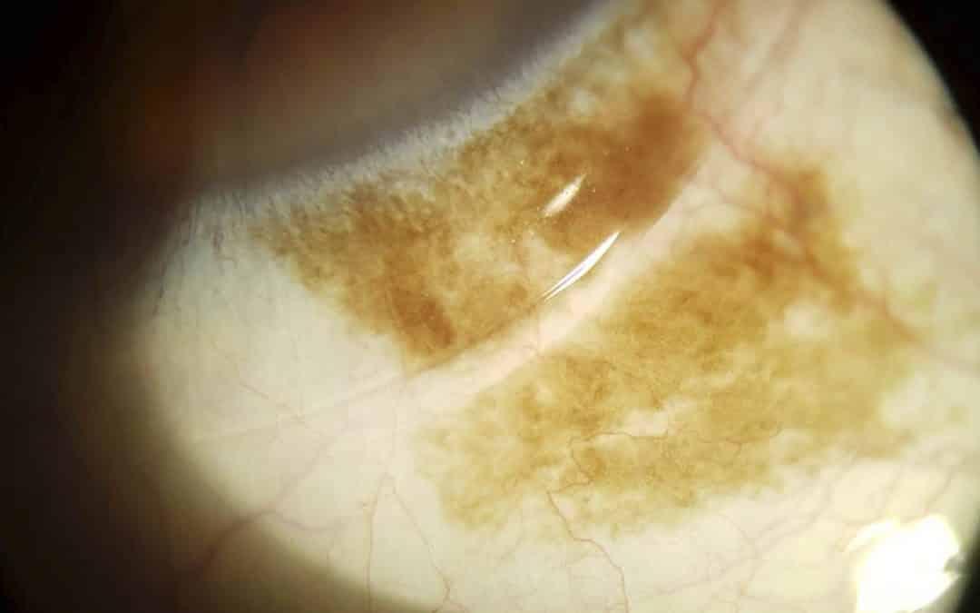 Mancha marrón en el ojo: ¿es grave?