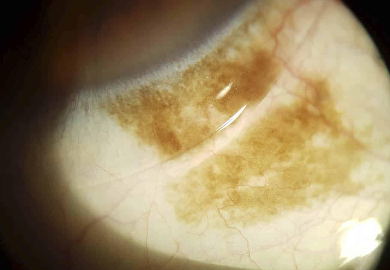mancha marrón en el ojo