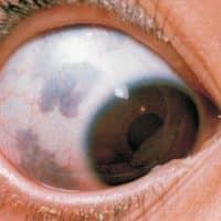 Mancha negra en el ojo: ¿debo preocuparme?