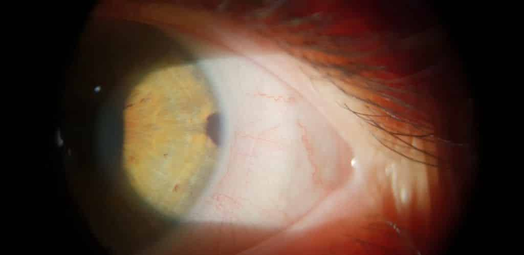 manchas blancas en el iris del ojo