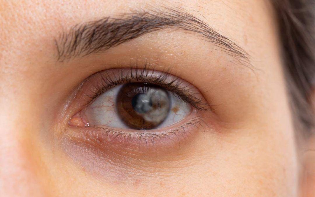 Tengo manchas en los ojos, ¿por qué se producen?