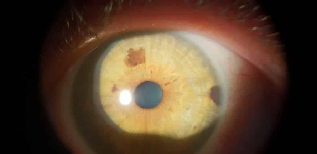 manchas negras en el iris del ojo