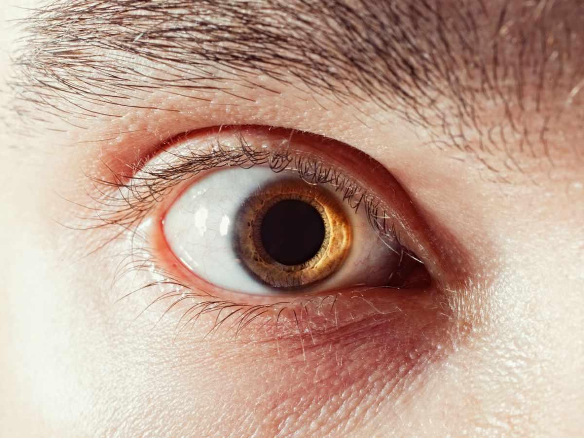 Pupilas dilatadas o midriasis: Qué son, causas y tratamiento