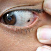 Nevus ocular o lunar en el ojo