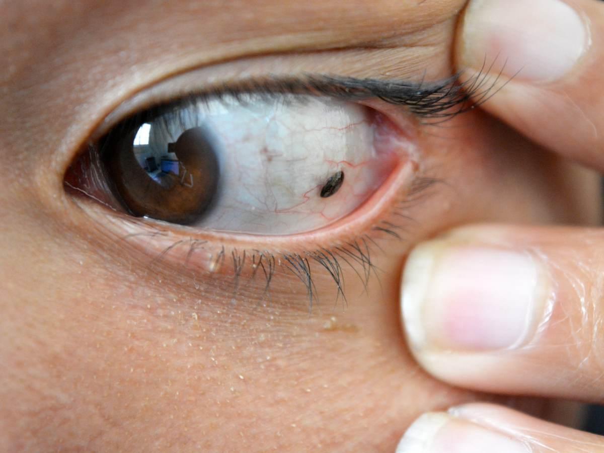 nevus ocular