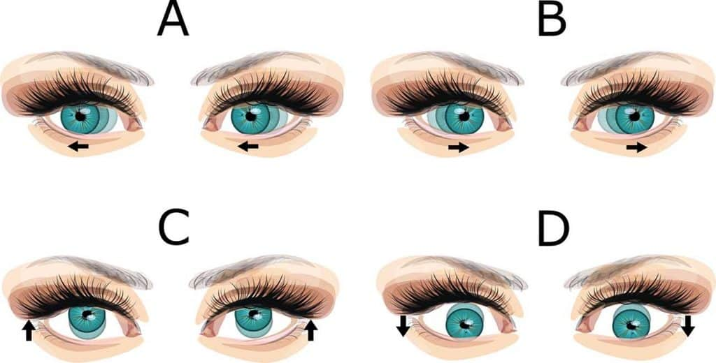 nistagmus ocular