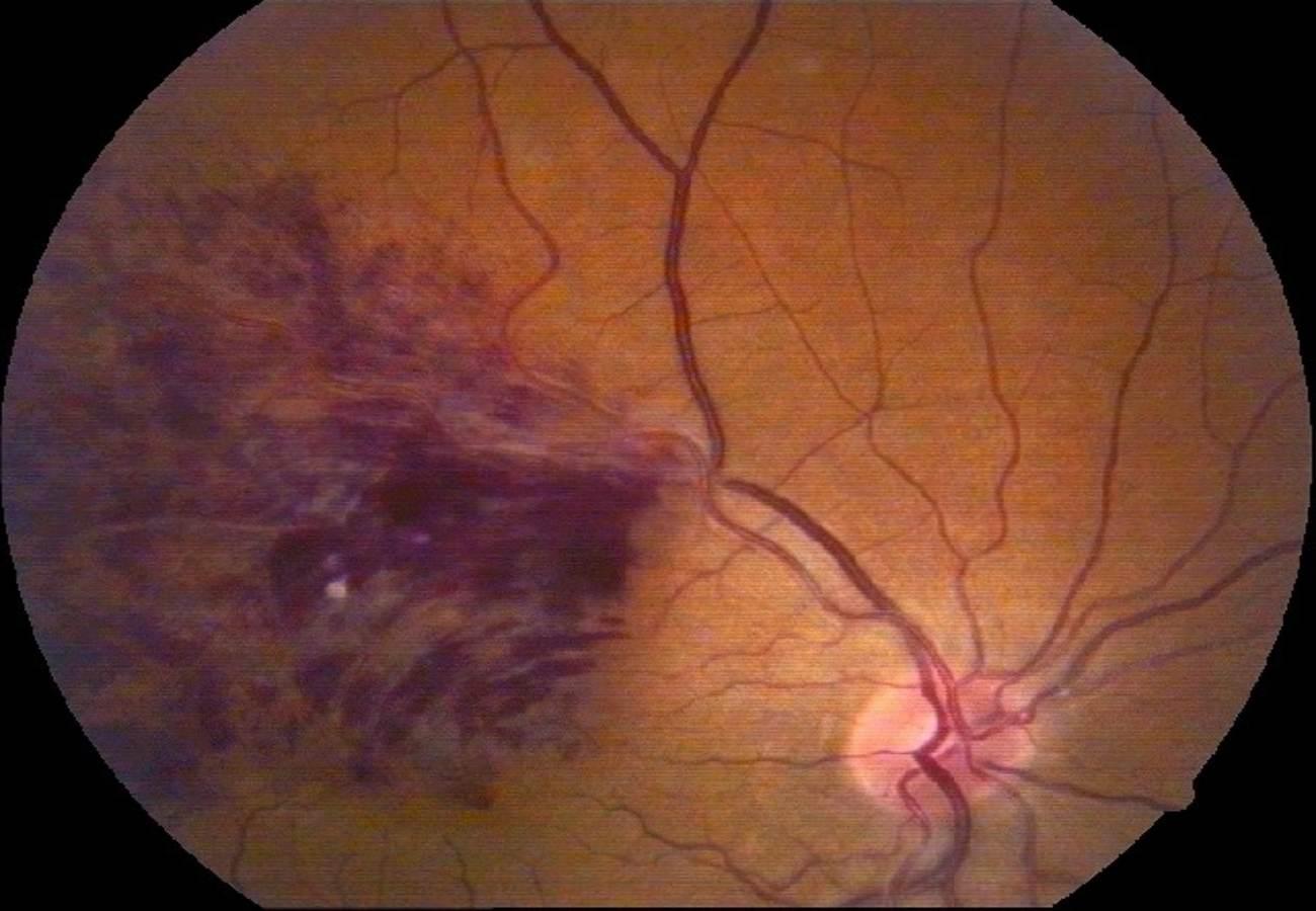 oclusion venosa de la retina