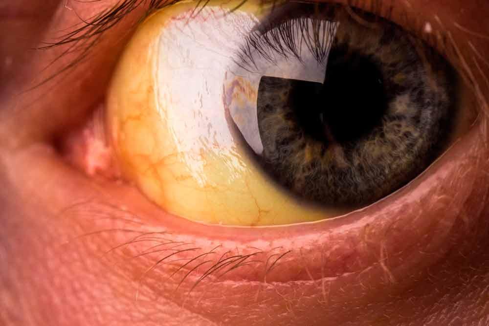 Ojos amarillos, causas y tratamiento
