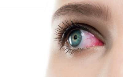 Red eyes and contact lenses: prevent this discomfort with the appropriate measures
